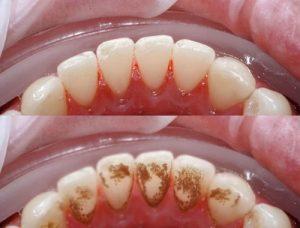 Quá trình hình thành vôi răng