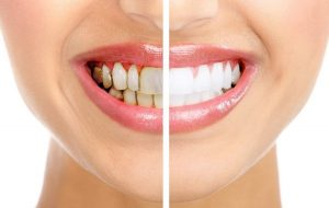 Vôi răng gây nhiều bệnh lý răng miệng