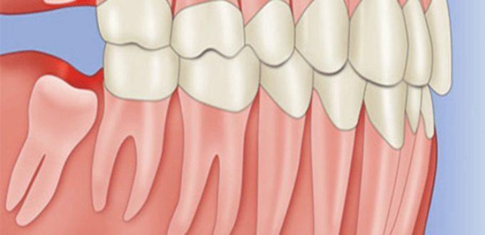dấu hiệu mọc răng khôn