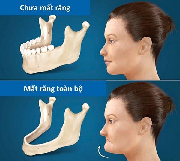 Phân biệt răng cấm và răng khôn