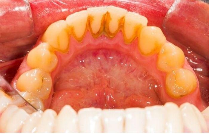 Vôi răng (ảnh minh họa)